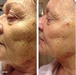 En stor forskel på denne kvinde som er 73 år.