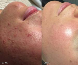 Dette er Sandra som havde en meget slem irriteret hud med meget acne
